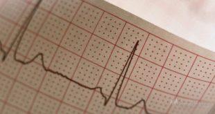 «День здорового сердца» пройдет во всех поликлиниках региона