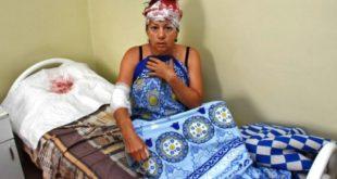 Раненная ковшом мусоровоза жительница Воронежа: «Изголовы кровь била фонтаном»